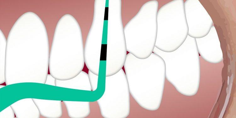 dental money